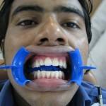 after Dental Treatment in Delhi