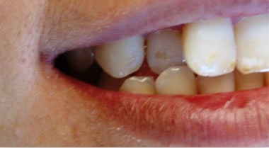 before cosmetic dentistry treatment