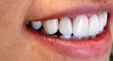 after cosmetic dentistry treatment