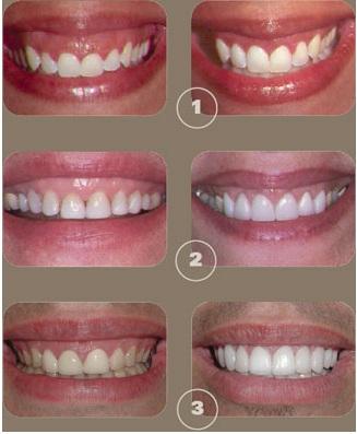 Crown lengthening at best Dental Clinic Delhi