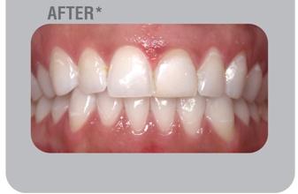 after teeth whitening in Delhi