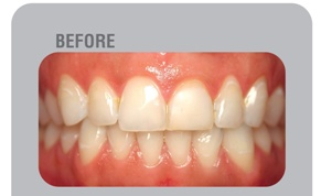 before teeth whitening in Delhi