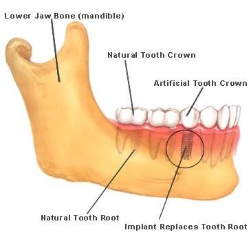 dental implants in Delhi, India