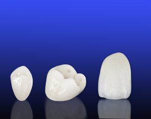 Ceramic-crown-2